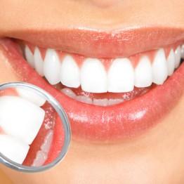 Cirurgia Oral | Blanca Odontologia - Brasília/DF