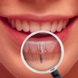 Implantes Dentários | Blanca Odontologia - Brasília/DF