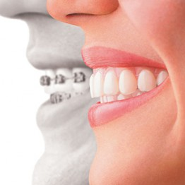 Ortodontia | Blanca Odontologia - Brasília/DF