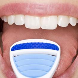 Tratamento Halitose - Mau Hálito | Blanca Odontologia - Brasília/DF