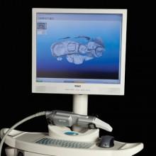 Restauração de Dentes com Impressora 3D   Blanca Odontologia Brasília/DF