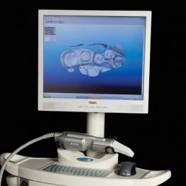 Restauração de Dentes com Impressora 3D | Blanca Odontologia Brasília/DF