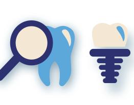 Implantes dentários ou dentaduras