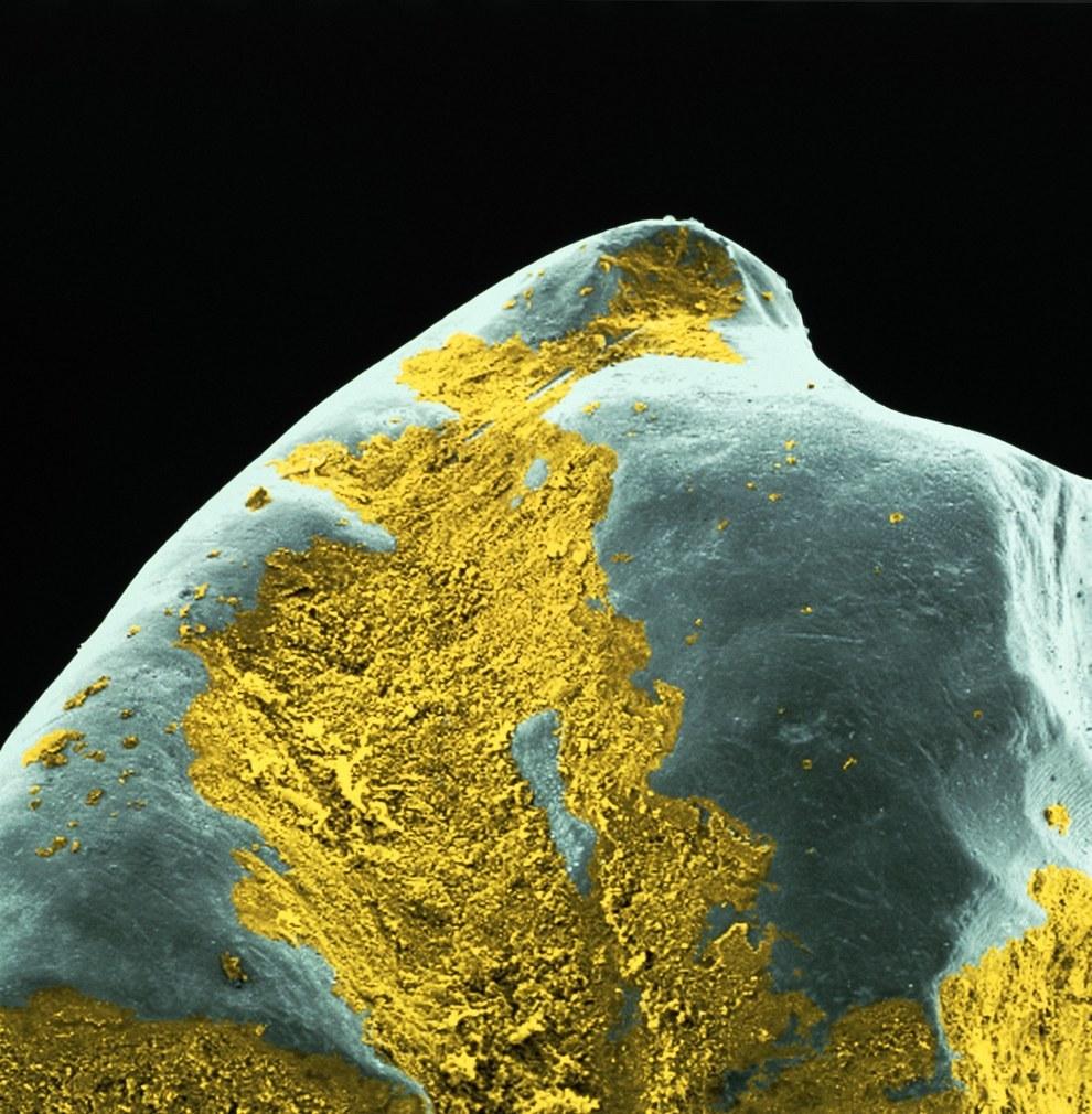 8 Imagens microscópicas de dentes