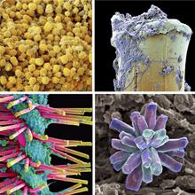 Imagens microscópicas de dente