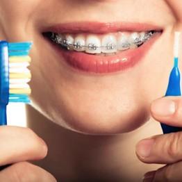 Como limpar os dentes com aparelho